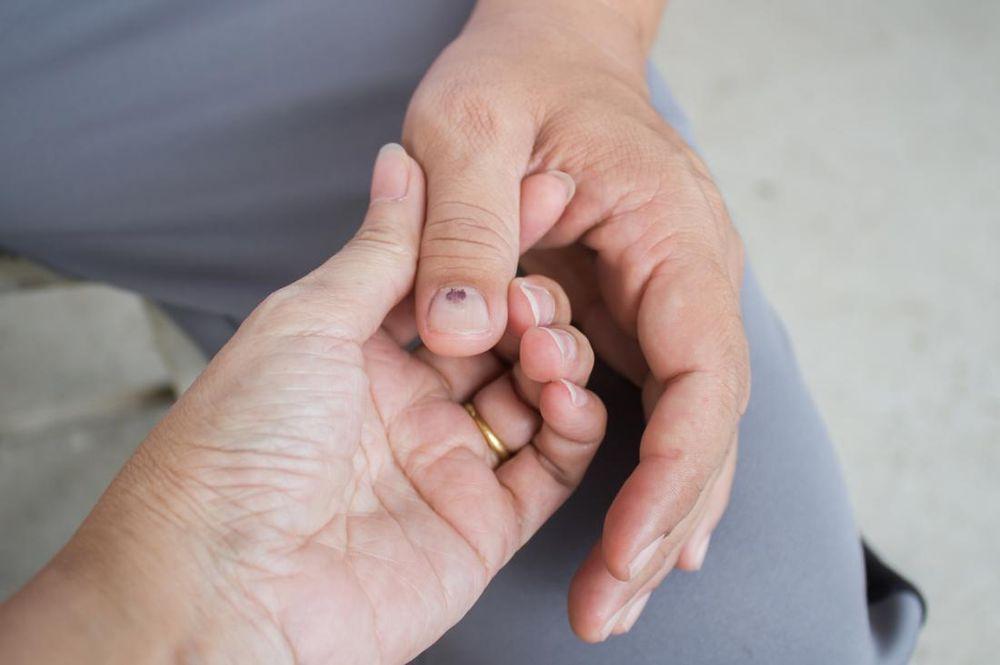 Lucruri interesante despre unghiile tale - petele de pe unghii