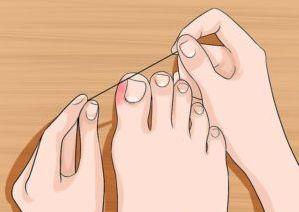 Tratament pentru unghia încarnată